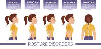 Infographics de desordens da postura ilustração do vetor