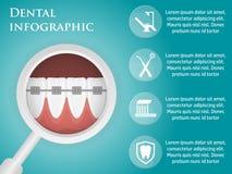 Infographics dental del diseño de la plantilla Foto de archivo libre de regalías