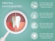 Infographics dental del diseño de la plantilla con los iconos, para su sitio web Fotos de archivo libres de regalías