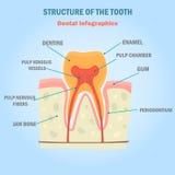 Infographics di colore della struttura del dente Illustrazione dentaria per il web e la progettazione mobile Fotografia Stock