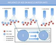 Infographics: en el fluence de la edad en unidades de motor del músculo libre illustration