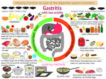 Infographics healthy nutrition. Gastritis Stock Images