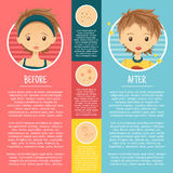 Infographics on problem skin with illustrations Stock Photo