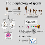 Infographics sperm morphology Stock Photography