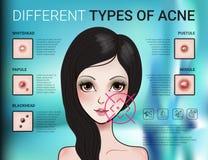 Infographics van verschillend type van huidacne stock illustratie