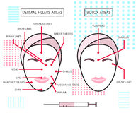 Infograthic poster about dermal fillers and botox ares. Injections. Cosmetology. Beauty. Vector Illustration. Stock Images