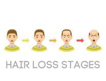 Informatiegrafiek van de stadiasoorten van het haarverlies kaalheid op mannelijke hoofdvector worden geïllustreerd die Royalty-vrije Stock Fotografie