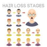 Informatiegrafiek van de stadiasoorten van het haarverlies kaalheid op mannelijke hoofdvector worden geïllustreerd die Royalty-vrije Stock Afbeeldingen