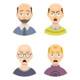Informatiegrafiek van de stadiasoorten van het haarverlies kaalheid op mannelijke hoofdvector worden geïllustreerd die Stock Afbeeldingen