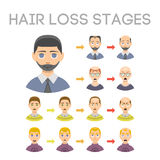 Information chart of hair loss stages types of baldness illustrated on male head vector. Stock Photos