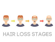 Information chart of hair loss stages types of baldness illustrated on male head vector. Royalty Free Stock Images