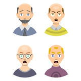Information chart of hair loss stages types of baldness illustrated on male head vector. Stock Images