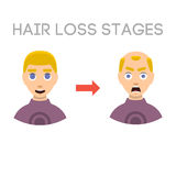 Information chart of hair loss stages types of baldness illustrated on male head vector. Stock Photography