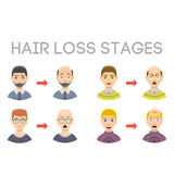 Information chart of hair loss stages types of baldness illustrated on male head vector. Royalty Free Stock Image