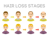 Information chart of hair loss stages types of baldness illustrated on male head vector. Royalty Free Stock Photos