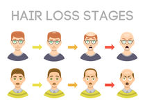 Information chart of hair loss stages types of baldness illustrated on male head vector. Royalty Free Stock Photography