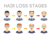 Information chart of hair loss stages types of baldness illustrated on male head vector. Stock Image