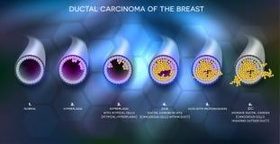 Informationsbaner om bröstcancer stock illustrationer