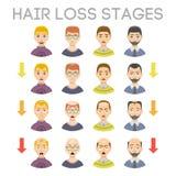 Informationsdiagrammet av hårförlust arrangerar typer av flintskallighet som illustreras på den manliga head vektorn stock illustrationer