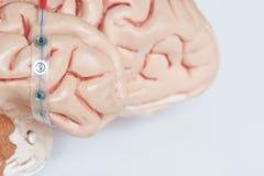 Ingevingen die elektroden aan de kant van hersenenoppervlakte registreren stock foto