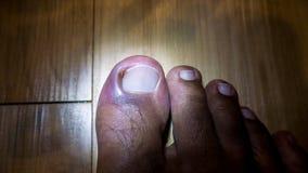 Ingrown ноготь или Onychocryptosis стоковое изображение rf