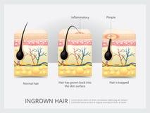Ingrown структура волос иллюстрация вектора