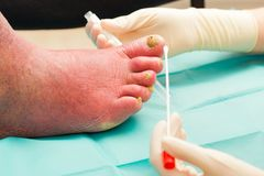 Ingrown Fungal Infection. Severe fungal infection on old man's arteriosclerotic leg royalty free stock image