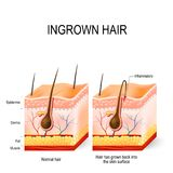 Ingrown hair. After having. buried hair. structure of the hair follicle. razor bumps royalty free illustration