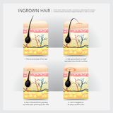 Ingrown Hair Structure royalty free illustration
