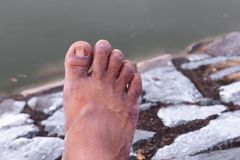 Ingrown nail Big toe broken toenail.  stock photo