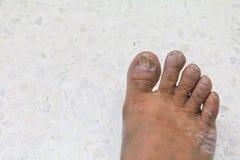 Ingrown nail Big toe broken toenail on a terrazzo floor background royalty free stock image