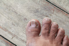 Ingrown nail Big toe selective focus, broken toenail on wooden. Floor background Stock Photo