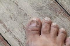 Ingrown nail Big toe selective focus, broken toenail on wooden. Floor background royalty free stock image