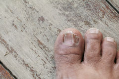 Ingrown nail Big toe selective focus, broken toenail on wooden. Floor background royalty free stock photography