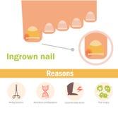 Ingrown nail. Vector. Cartoon. Isolated Flat feet nails fingers toenails Royalty Free Stock Photography