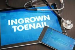 Ingrown toenail (cutaneous disease) diagnosis medical concept on Stock Photos