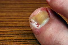 Ingrown toenail Stock Images