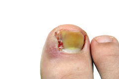 Ingrown toenail after surgery Stock Images