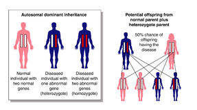 Inheritance. Diagram of dominant inheritance, showing the likelihood of diseased offspring from a normal parent and a heterozygote parent Royalty Free Stock Images
