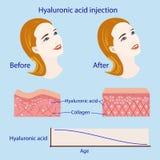 Iniezione dell'acido ialuronico, prima ed influenza, illustrazione di vettore, diagramma Fotografie Stock Libere da Diritti