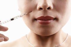 Iniezione di Botox fotografia stock libera da diritti
