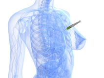 Injection - biopsy. 3d rendered illustration of a transparent female body with injection in breast Stock Photos