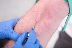 Injection of a catheter in the arm. Of a patient Royalty Free Stock Image