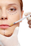 Injection of collagen Royalty Free Stock Photos