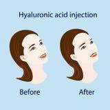 Injection d'acide hyaluronique, avant et affect, illustration de vecteur Photo stock