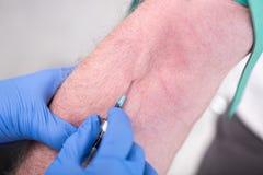 Injection d'un cathéter dans le bras Image libre de droits