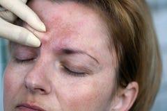 Injection de Botox image libre de droits