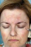 Injection de Botox photo stock