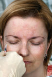 Injection de Botox photos libres de droits
