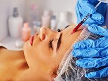 Injection de remplisseur pour le visage de front de femme Chirurgie faciale esthétique en plastique photos stock